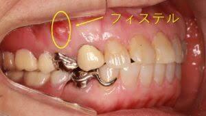 歯肉にできもの?その正体は?① | オーバルコート歯科室ブログ